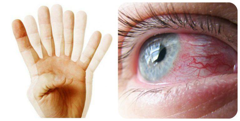 Нечеткое зрение, двоение в глазах